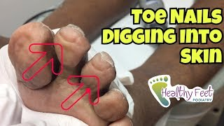 Nails Curling Into Toes - Nail Trimming for Diabetic by Tampa Podiatrist Dr. Binh Nguyen