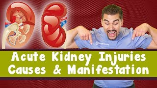 Acute Kidney Injury: Causes & Manifestations