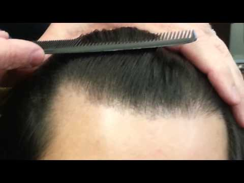 Hair Transplant hair line results by Dr. Dan McGrath, Austin, TX