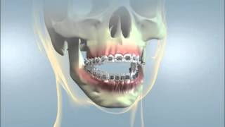 Hayward Braces: Jaw Surgery for Open Bite