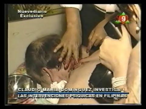Cirugías psíquicas - Claudio María Domínguez en Filipinas - Nuevediario