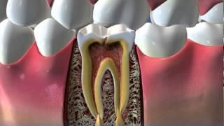 Что делают если зуб сломался с корнем