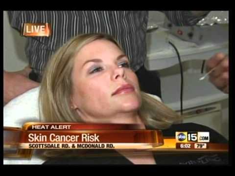 Free VISIA Skin Cancer Analysis with Dr. Shapiro