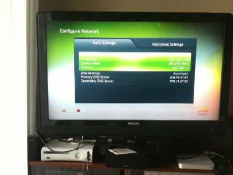 How to Manually Configure Your Xbox Network Settings to get a Static IP Address