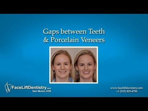 Gaps between Teeth & Porcelain Veneers