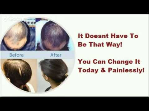 Provillus Reviews Yahoo Hair Loss Relief For Men And Women video