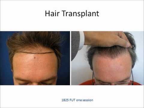 Latest Technology In Hair Transplantation - Webinar from a LA Hair ...