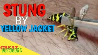 Stung by a Yellow jacket.