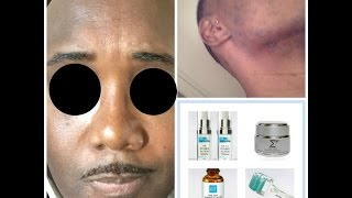 How to Treat Breakouts & Hyperpigmentationd in Black Skin Using SRM