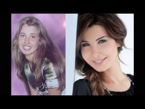 فضيحة الفنانات قبل و بعد عمليات التجميل 2012