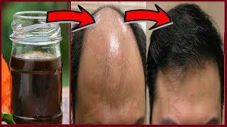 Magical Hair Oil For All Types of Hair- Get Long Hair, Thick Hair,Black Hair-Cure Baldness,Hair Loss