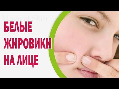 От чего появляются белые жировики на лице