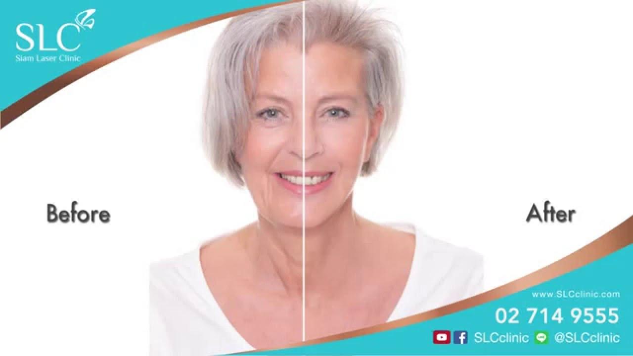 ศัลยกรรมดึงหน้าด้วยเทคนิคทันสมัย ''Ribbon Face Lift''