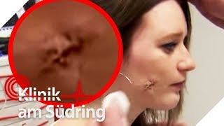 Make-up Fail: Riesige Eiter-Wunde wegen Make-up Schwamm | Klinik am Südring | SAT.1 TV