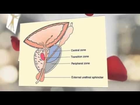 Ayurvedic Home Remedies Reviews: Ayurstate For Enlarged Prostate Symptoms