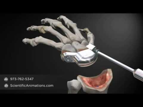 лучезапястный сустав титан