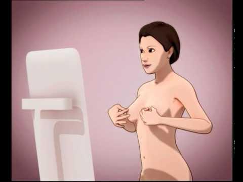 Samopregled dojke - 77 zena u 7 dana