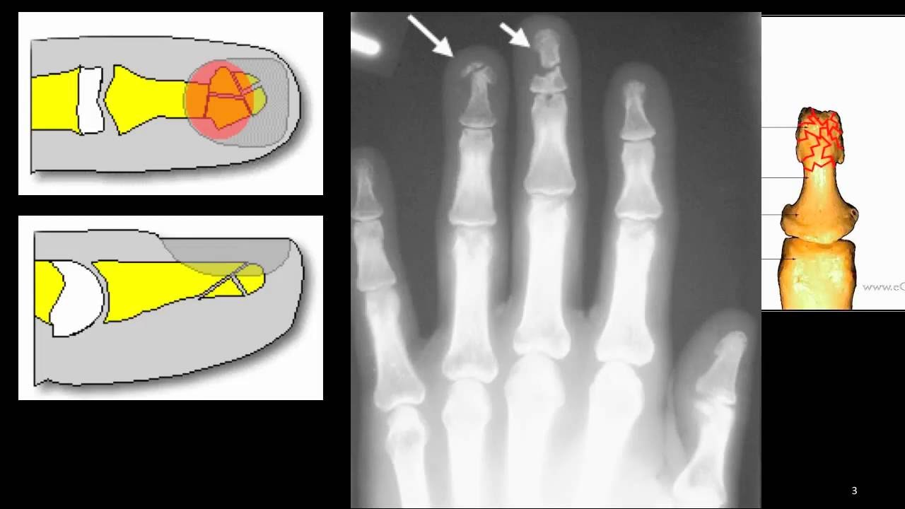 how to tell if your finger has a fracture