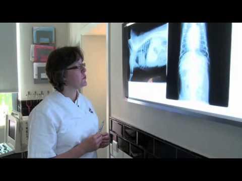 Radiografia toracica: parametri fuori norma (3/5) Pattern polmonare