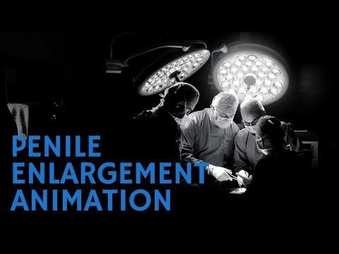 Penis Enlargement Implant Surgery Animation Video - Dr Elist reviews penile enlargement implant.