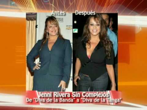 Cirugías de las Famosas: Antes y Después / Before and After: Celebrity Plastic Surgeries