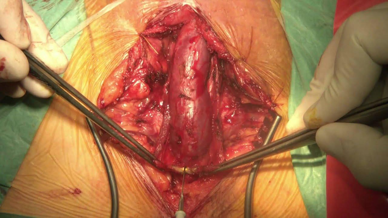 Смотреть в ютубе осмотр гинеколога 12 фотография