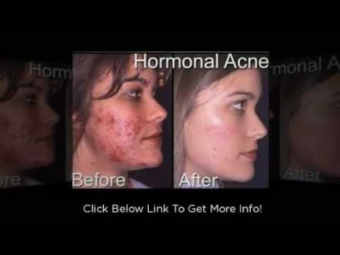 Cystic Acne Pictures - Why You Need To Get Rid Of Cystic Acne Right Away