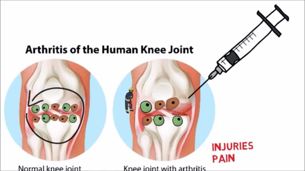 How to treat your knee pain photo