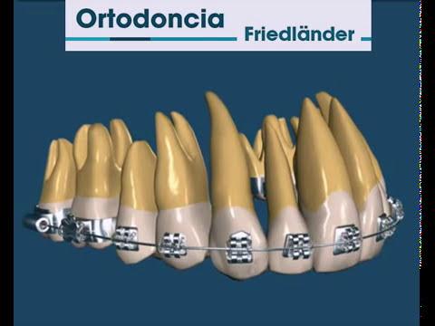 Como Se Mueven Los Dientes En Ortodoncia Funcion De Alambre Y Brackets