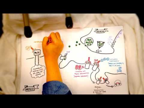 Myasthenia gravis: pathophysiology thumbnail