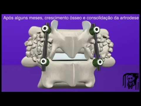 cirurgia na coluna lombar