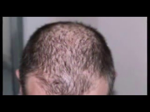 Como usar el aceite de la ortiga para los cabellos