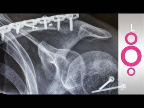 Why is it better to glue bones than to pin them? - do you know?