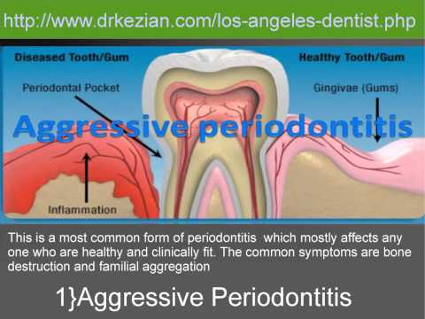 Periodontitis Disease And Its Types