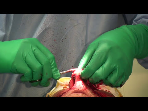 Rhinophyma Excision by Janjua Facial Surgery