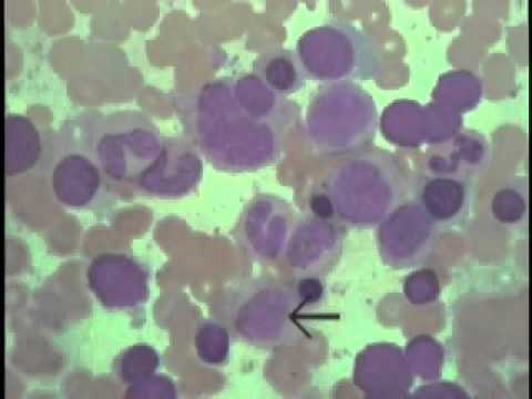 Histology of Blood and Bone Marrow