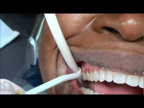 {#125} REMOVING MY CERAMIC BRACES ~ BRACES COMING OFF MY TOP TEETH