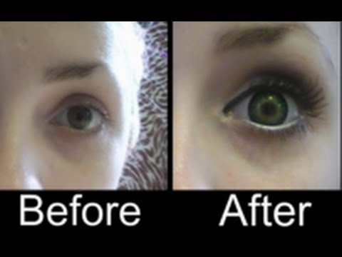 how to make your iris bigger