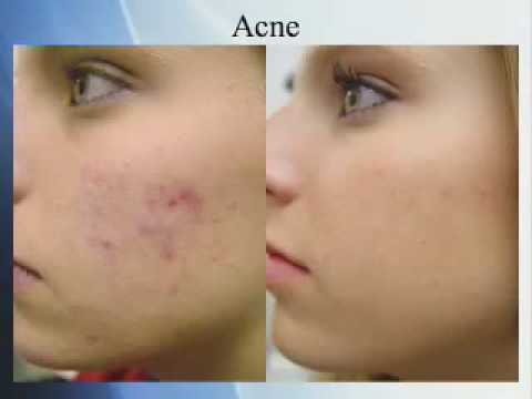 Can Vitamins Cure Acne?