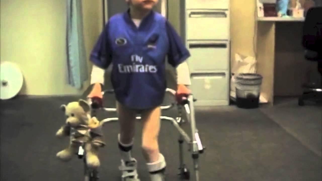 Spiral Thigh Brace For Cerebral Palsy Spastic Diplegia