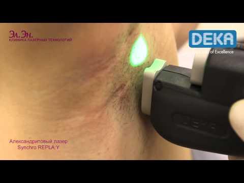 Лазерная эпиляция подмышек александритовым лазером