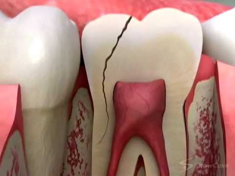 Dentist - Cracked Tooth Crown Procedure