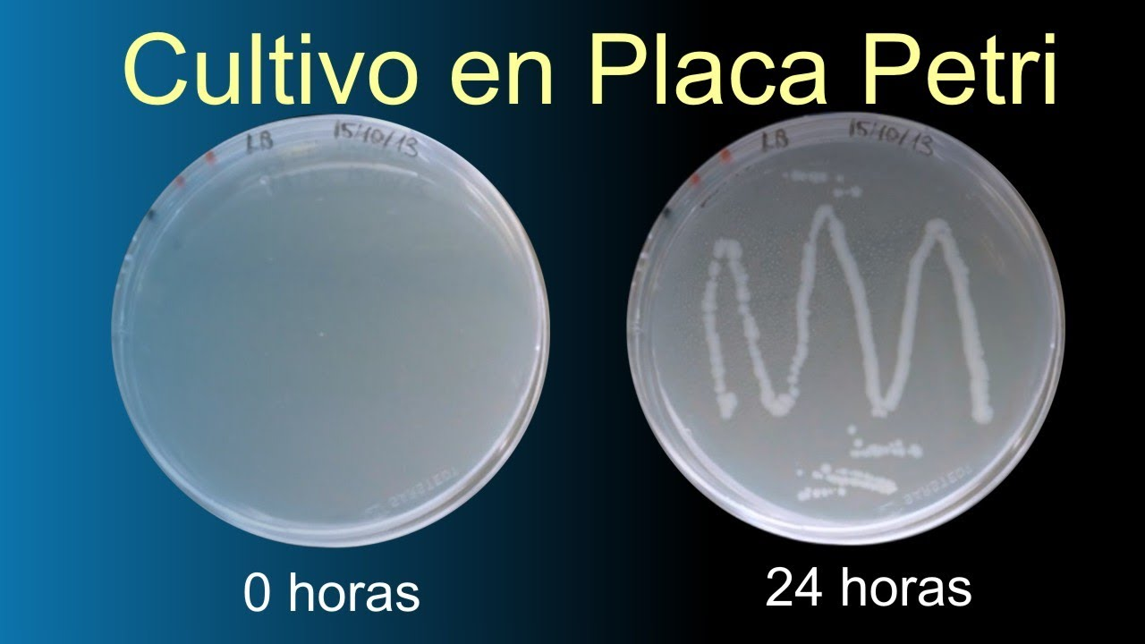 Bacteriano en Placa Petri