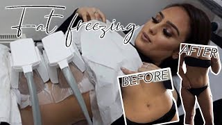 FREEZING MY FAT!!??? Losing weight!!