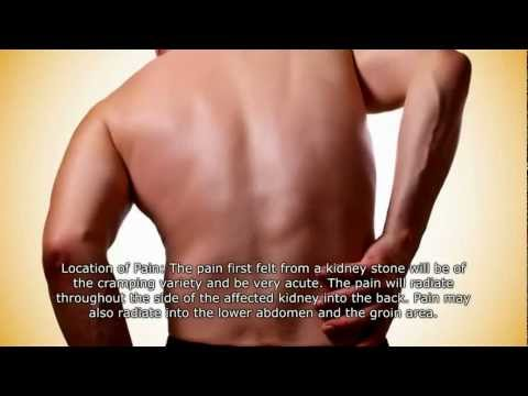 Kidney Stone Pain Location Male Kidney Stone Pain Loca...