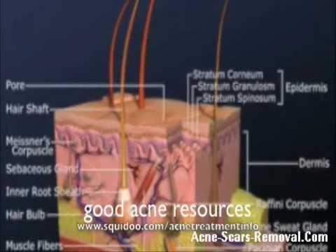Facial Acne Scar - Acne scar peel
