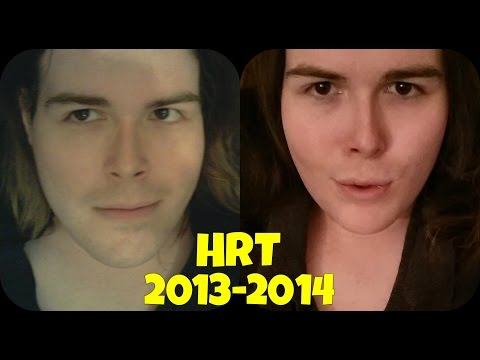 Mtf Transgender Transition   1 Year On Hrt Hormones Update