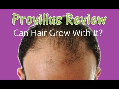 Does Provillus work ? Honest Provillus men & Women Review