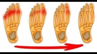 4 Façons efficaces de se débarrasser des oignons de pieds