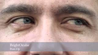 Surgery to permanently change your iris color / brightocular